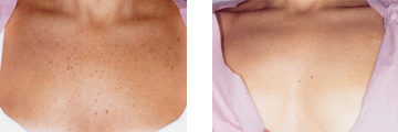 Skinrejuvenation behandling exempelbild