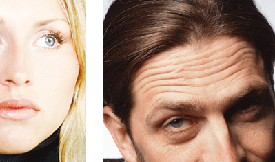 Exempelbilder Botox och Azzalure