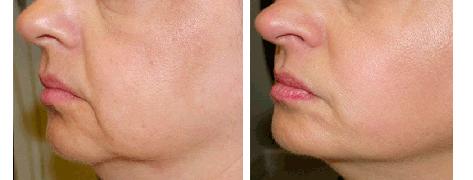 hamsterpåsar och nasolabiala veck före och efter behandling