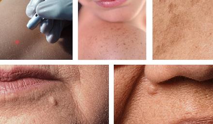 Hudförändringar laser ansikte