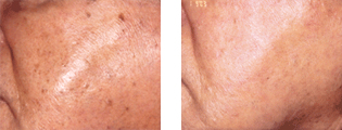 Skinrejuvenation exempelbild