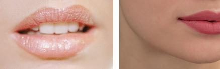 Läppförstoring, få fylligare läppar