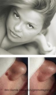 Ta bort hudvårtor
