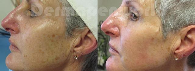 Exempelbilder behandling Dermapen